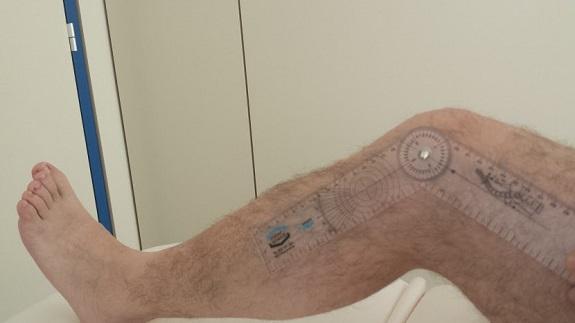 Recuperación tras implante de prótesis de rodilla
